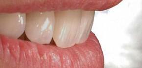 ordinacija zadar, stomatolog zadar, zubar zadar, popravak zubi